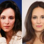 Madeleine Stowe Plastic Surgery Before And After Pictures 150x150