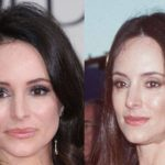 Madeleine Stowe Plastic Surgery Lip Injections 150x150