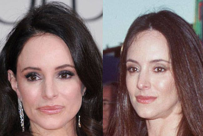 Madeleine Stowe Plastic Surgery Lip Injections