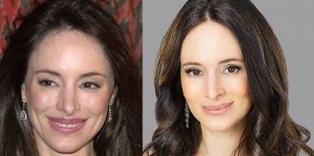 Madeleine Stowe, age-defying beauty or plastic surgery magic?