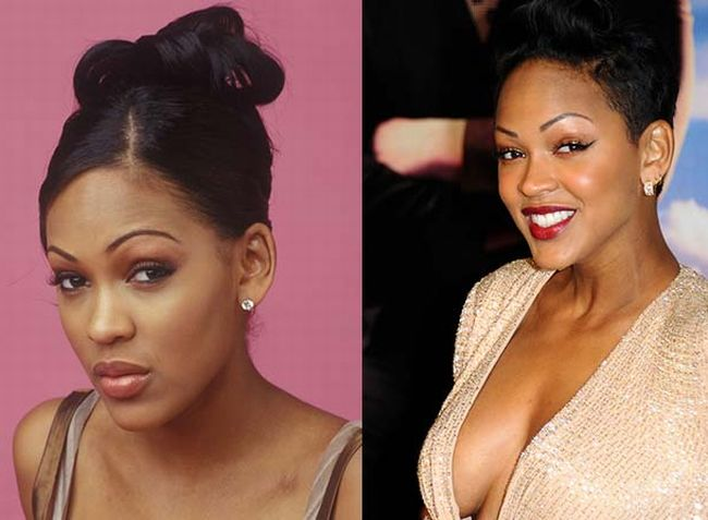Meagan Good Botox injections before and after