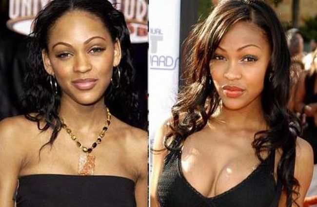 Meagan Good before and after Plastic Surgery