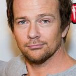 Sean Patrick Flanery Cheek Transplants