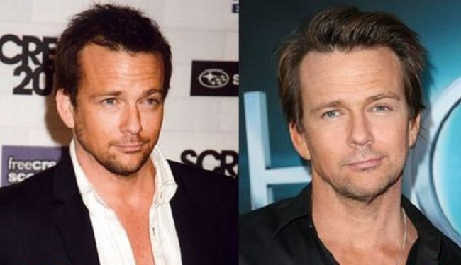 Sean Patrick Flanery Cheeks Transplants Plastic Surgery