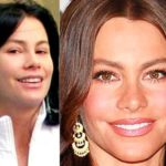 Sofia Vergara Before And After Pictures 150x150