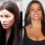 Sofia Vergara Before And After Plastic Surgery 150x150