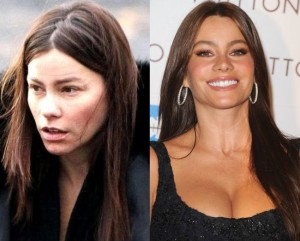 Sofia Vergara Before And After Plastic Surgery 300x241