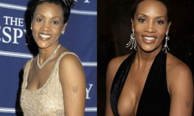 Vivica Fox Plastic Surgery Indication