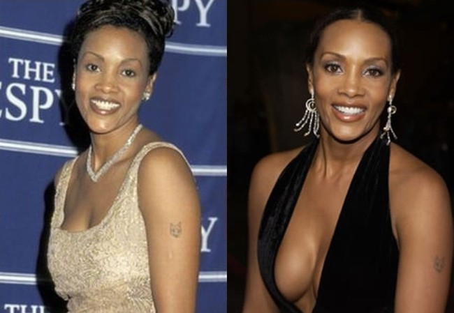 Vivica Fox Before And After Plastic Surgery