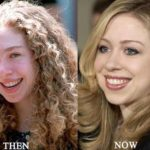Chelsea Clinton Before And After Pictures
