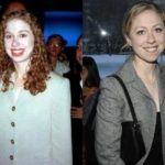 Chelsea Clinton Before And After Plastic Surgery Nose Job