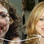 Chelsea Clinton Plastic Surgery Before And After Chin Job