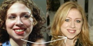 Chelsea Clinton Plastic Surgery Before And After Chin Job 300x151