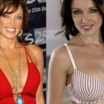 Danii Minogue Before And After Breast Implants 150x150