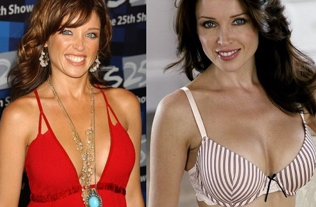 Danii Minogue Before And After Breast Implants
