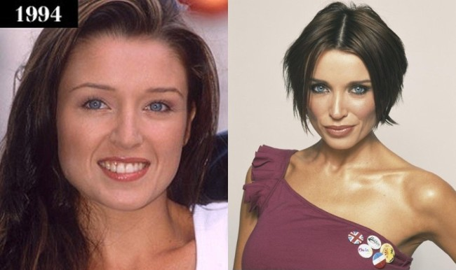 Danii Minogue Before And After Lip Augmentation
