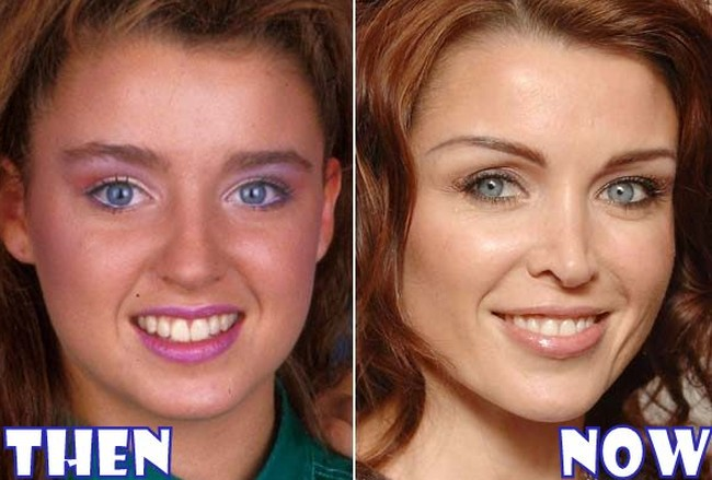 Danii Minogue Before And After Photos