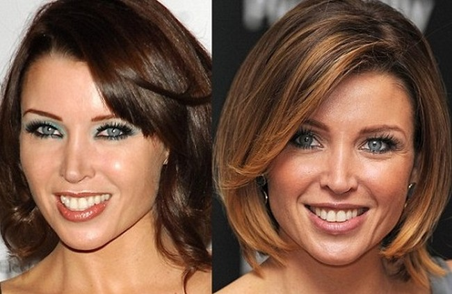 Danii Minogue Plastic Surgery Eyebrows