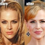 Julie Benz Before And After Juvederm Injections Into Lips 150x150