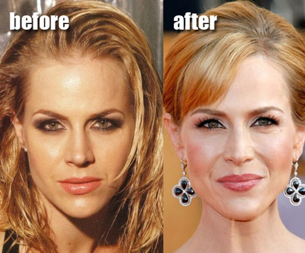 Julie Benz Before And After Juvederm Injections Into Lips