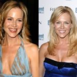 Julie Benz Before And After Plastic Surgery Boob Job 150x150