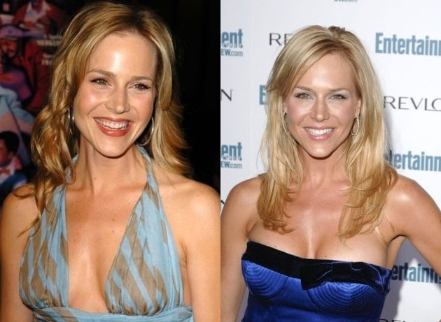 Julie Benz Before And After Plastic Surgery Boob Job