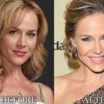 Julie Benz Botox Injections Her Forehead Is Smooth And Wrinkle Free 150x150