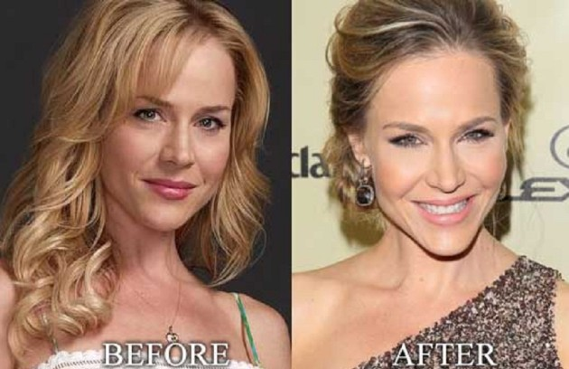 Julie Benz Botox Injections Her Forehead Is Smooth And Wrinkle Free