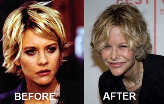 Meg Ryan Before And After Eye Surgery