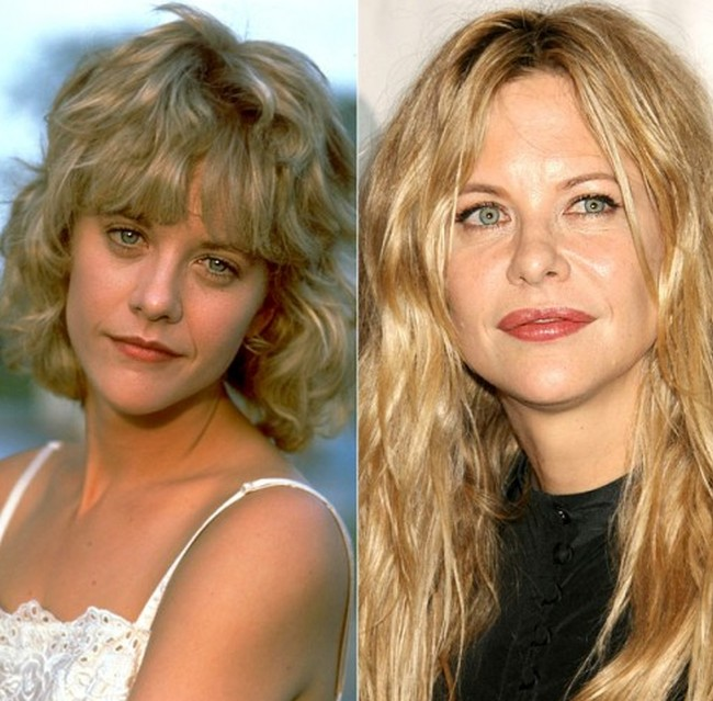 Meg Ryan Before And After Photos