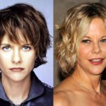 Meg Ryan Plastic Surgery Cheek Modification 150x150