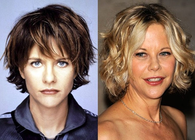 Meg Ryan Plastic Surgery Cheek Modification