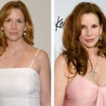 Melissa Gilbert Before And After Photos 150x150