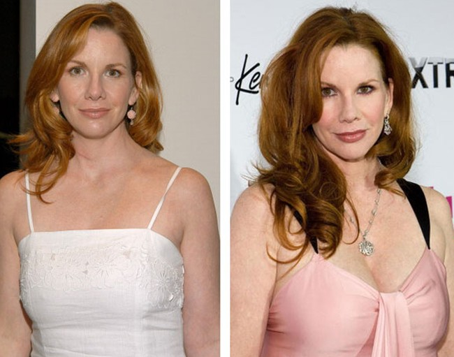 Melissa Gilbert Before And After Photos