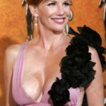 Melissa Gilbert Breast Augmentation 150x150