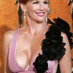 Melissa Gilbert Breast Augmentation