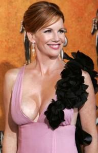 Melissa Gilbert Breast Augmentation 192x300