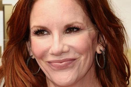 Melissa Gilbert Cheek Augmentation And Lip Fillers