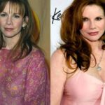 Melissa Gilbert Difference In The Size And Shape Of Breasts