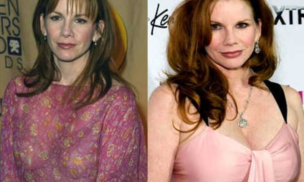 Inside Information On Melissa Gilbert Plastic Surgery