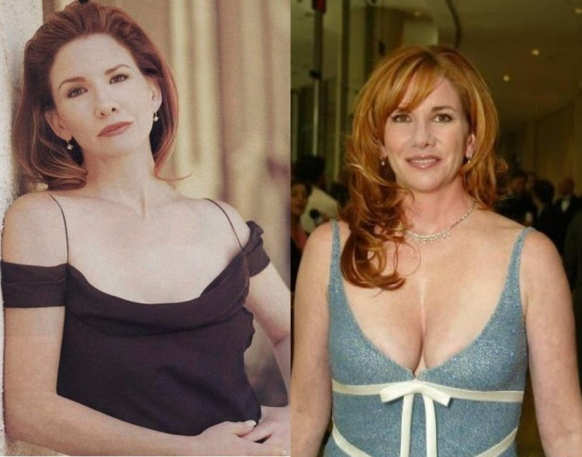 Melissa Gilbert Plastic Surgery Before And After Breast Augmentation