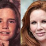 Melissa Gilbert Plastic Surgery Nose Bridge Appears Smaller And a Pointier Nose Tip  150x150