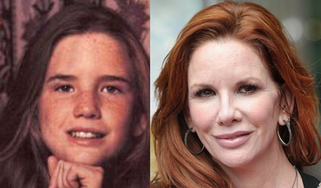 Melissa Gilbert Plastic Surgery Nose Bridge Appears Smaller And a Pointier Nose Tip