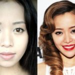 Michelle Phan Before And After Plastic Surgery 150x150