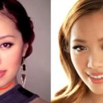 Michelle Phan Eyelid Before And After Plastic Surgery 150x150