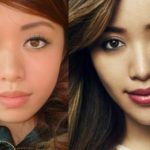 Michelle Phan Plastic Surgery Chin Implants 150x150