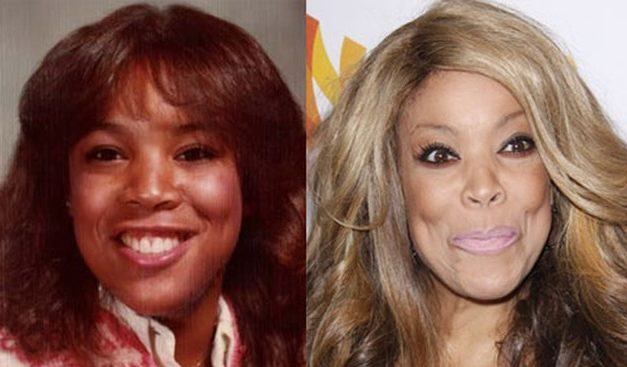 The Whole Truth About Wendy Williams Plastic Surgery