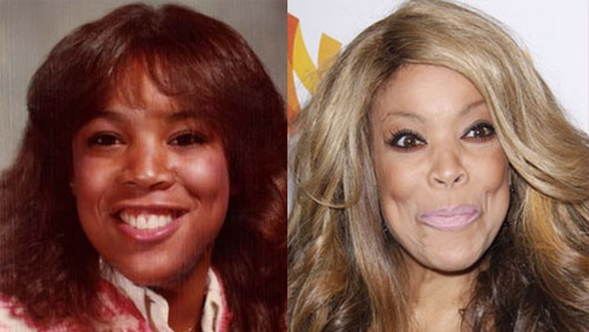 Wendy Williams Before And After Pictures