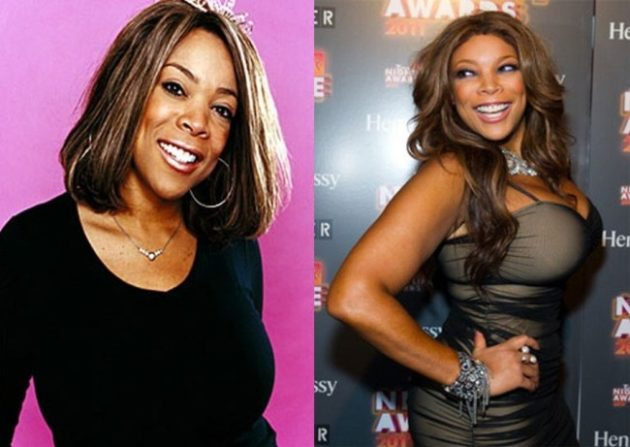 Wendy Williams Before And After Plastic Surgery 630x447