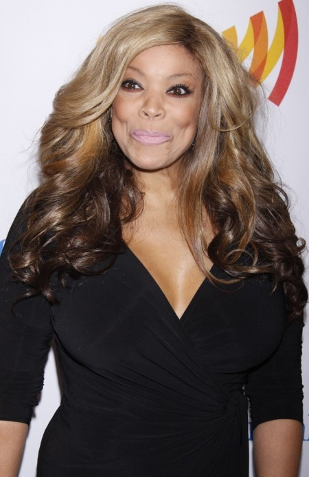 Wendy Williams Cheek Bone Implants And Facelift